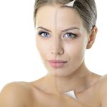Facial aging. Is sleep really essential for great skin?